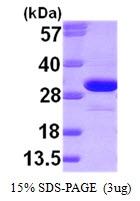 AR09320PU-L - Ketohexokinase