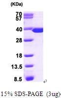 AR09329PU-L - Thymidylate synthase (TS)