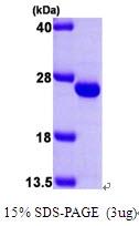 AR09331PU-L - Frataxin (FXN)