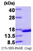 AR09342PU-L - Transthyretin / Prealbumin