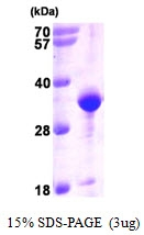 AR09370PU-L - VAMP-associated protein A (VAPA)