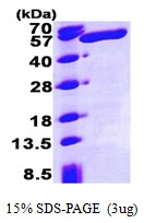 AR09371PU-L - ALDH3