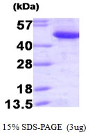 AR09394PU-L - CTBP1