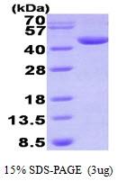 AR09399PU-L - Deoxyhypusine synthase (DHPS)