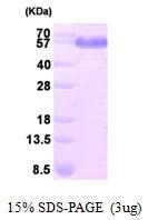 AR09404PU-L - Dihydrolipoyl dehydrogenase