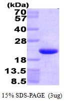 AR09415PU-L - HMGN1