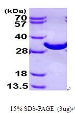 AR09427PU-L - Bisphosphoglycerate mutase