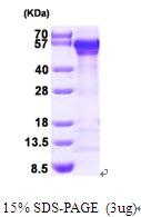 AR09452PU-L - Calreticulin