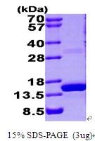 AR09453PU-L - S100A9 / Calgranulin-B / MRP14
