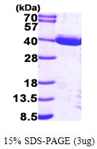 AR09509PU-L - TP53I3
