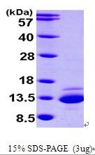AR09538PU-L - CTNNBIP1