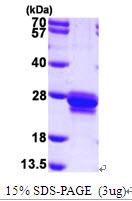 AR09539PU-L - Transgelin (TAGLN)