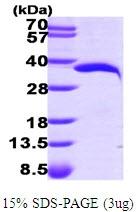 AR09580PU-L - NMNAT1