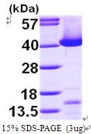 AR09604PU-L - Transaldolase (TALDO1)