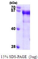 AR09611PU-L - BIN1 / AMPHL