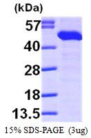 AR09616PU-L - TXNDC4 / ERP44