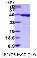AR09621PU-L - Tropomyosin-1 (TPM1)
