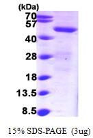 AR09635PU-N - Sorting nexin-1 (SNX1)