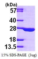AR09708PU-L - Adenylate kinase 1 (AK1)