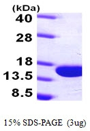 AR09718PU-L - Parvalbumin alpha / PVALB