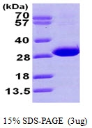 AR09720PU-L - Carbonyl reductase 4