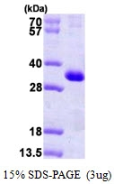 AR09729PU-L - Calsenilin