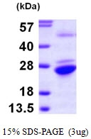 AR09757PU-L - GNPNAT1 / GNA1