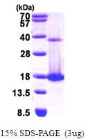 AR09798PU-L - Coactosin-like protein