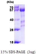 AR09801PU-N - PPP3CA / Calcineurin A