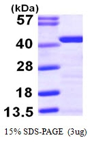 AR09813PU-N - Tropomyosin-2 (TPM2)