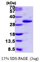 AR09826PU-L - Grancalcin