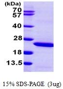 AR09848PU-L - Lipocalin-2
