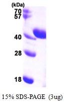 AR09920PU-L - Aldolase C / ALDOC