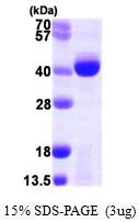 AR09921PU-L - ALKBH3 / DEPC1