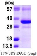 AR09953PU-L - CTDSP1
