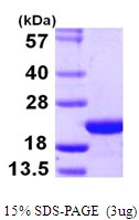 AR09988PU-L - Coatomer subunit zeta-1