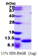 AR39025PU-L - S100A8 / Calgranulin-A / MRP8