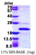 AR39026PU-L - AP1 complex subunit sigma-2