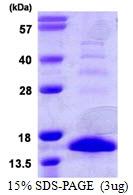 AR39060PU-L - S100A9 / Calgranulin-B / MRP14