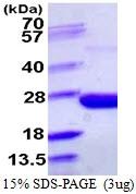 AR39072PU-L - Pyrophosphatase 1 / PPA1