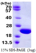 AR39126PU-L - Gamma-crystallin D