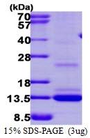 AR39140PU-L - Matrix Gla Protein