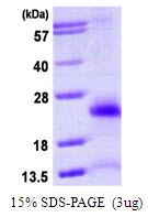 AR39150PU-L - Ubiquitin D (UBD)