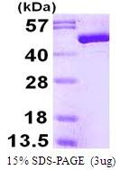 AR50087PU-N - Enolase beta