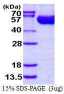 AR50096PU-N - Arginosuccinase