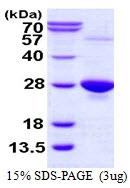 AR50098PU-N - Glutathione peroxidase 1 / GPX1