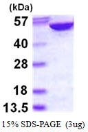 AR50100PU-N - Adenylosuccinate lyase / ASL