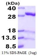 AR50102PU-N - IPP isomerase 1 / IDI1