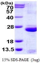 AR50129PU-N - Uroplakin-3a (UPK3A)