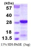 AR50134PU-N - Calcipressin-2